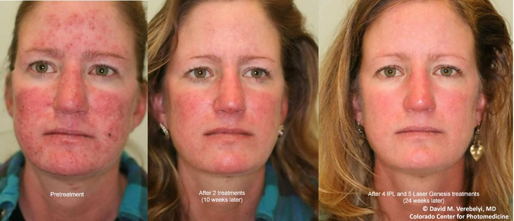 Mcc Toronto Laser Hair Removal Clinic